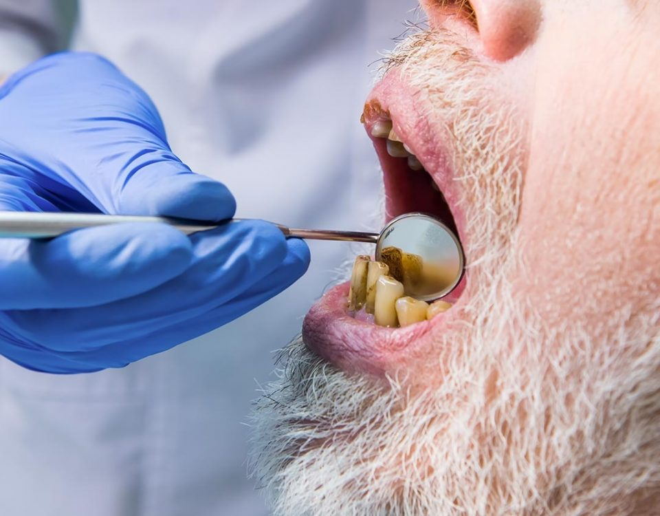 Meth Mouth: The Effects of Long-Term Meth Use on Oral Health