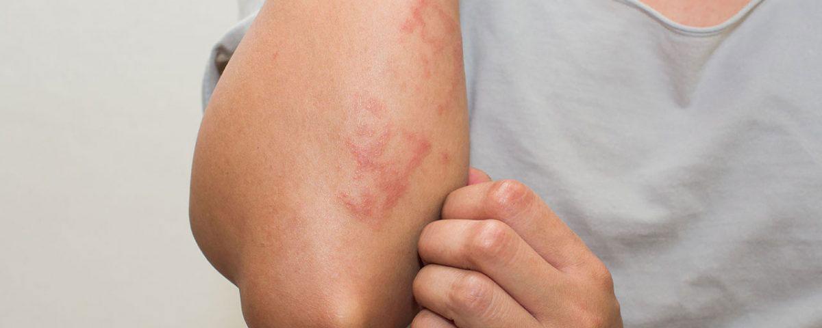 alcohol detox rash)